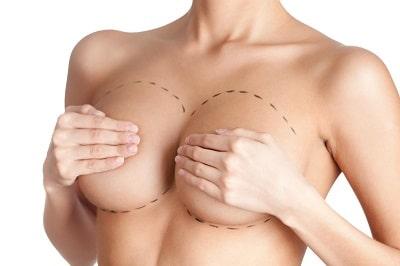 Medicina Estetica Madrid: Cirugia mamaria