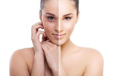 Medicina Estetica Madrid: Rejuvenecimiento facial