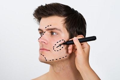Medicina Estetica Madrid: Cirugia facial
