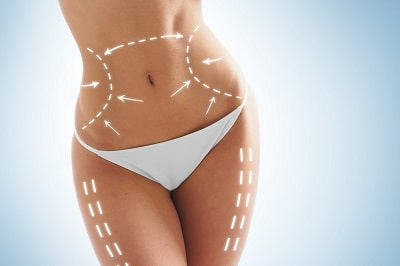 Medicina Estetica Madrid: Cirugia corporal