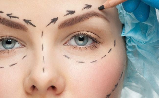 cirugia estetica madrid