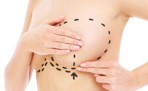 reducción de pecho en madrid dr.sarmentero