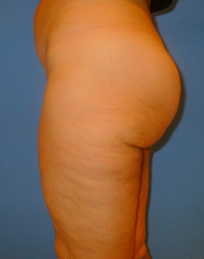 Implante o aumento de gluteos clinica doctor sarmentero cirugia plastica y estetica 1