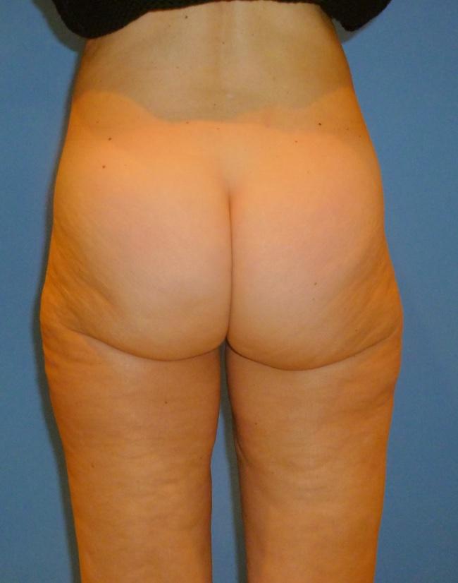 Implante o aumento de gluteos clinica doctor sarmentero cirugia plastica y estetica 11