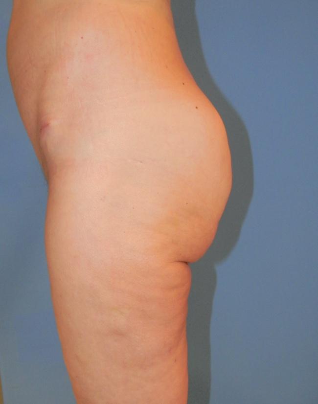 Implante o aumento de gluteos clinica doctor sarmentero cirugia plastica y estetica 111