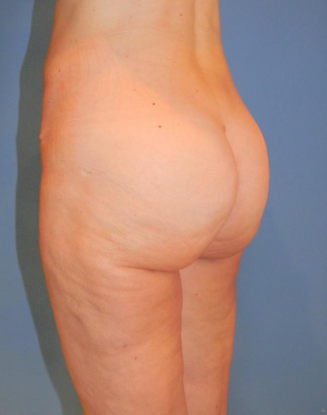 Implante o aumento de gluteos clinica doctor sarmentero cirugia plastica y estetica 1111