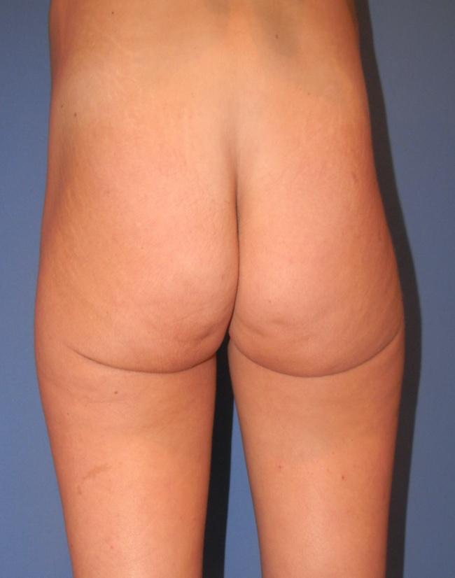 Implante o aumento de gluteos clinica doctor sarmentero cirugia plastica y estetica 2