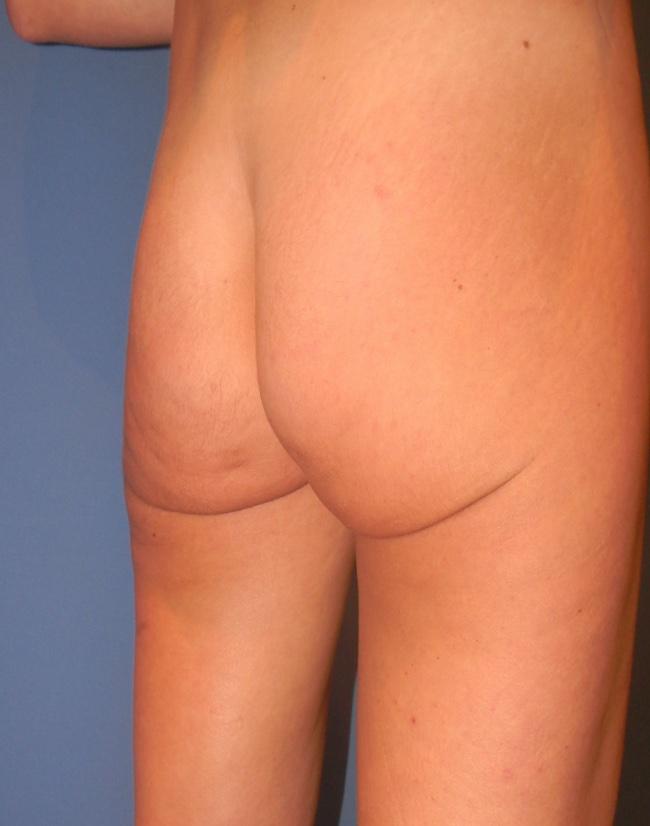 Implante o aumento de gluteos clinica doctor sarmentero cirugia plastica y estetica 22
