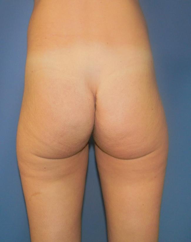 Implante o aumento de gluteos clinica doctor sarmentero cirugia plastica y estetica 222