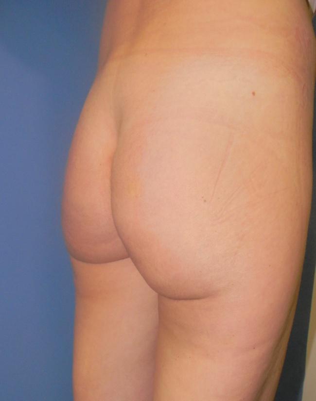 Implante o aumento de gluteos clinica doctor sarmentero cirugia plastica y estetica 2222