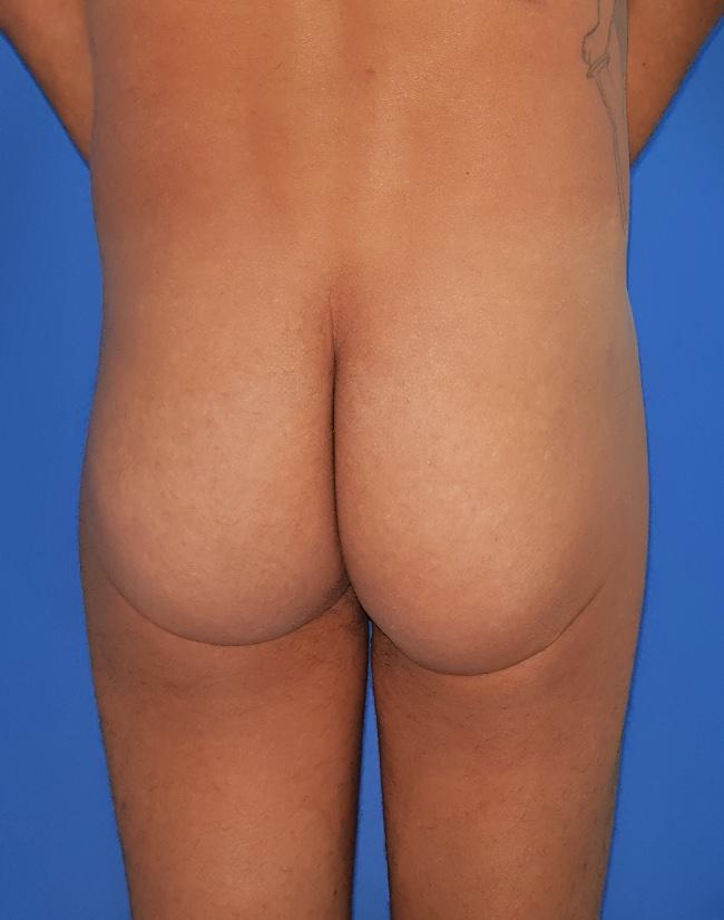 Implante o aumento de gluteos clinica doctor sarmentero cirugia plastica y estetica 3