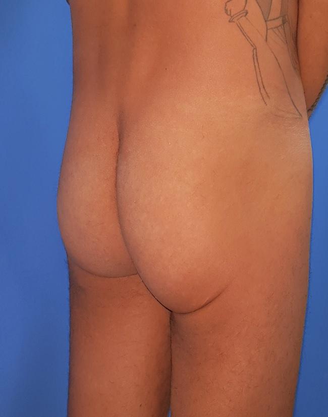 Implante o aumento de gluteos clinica doctor sarmentero cirugia plastica y estetica 33