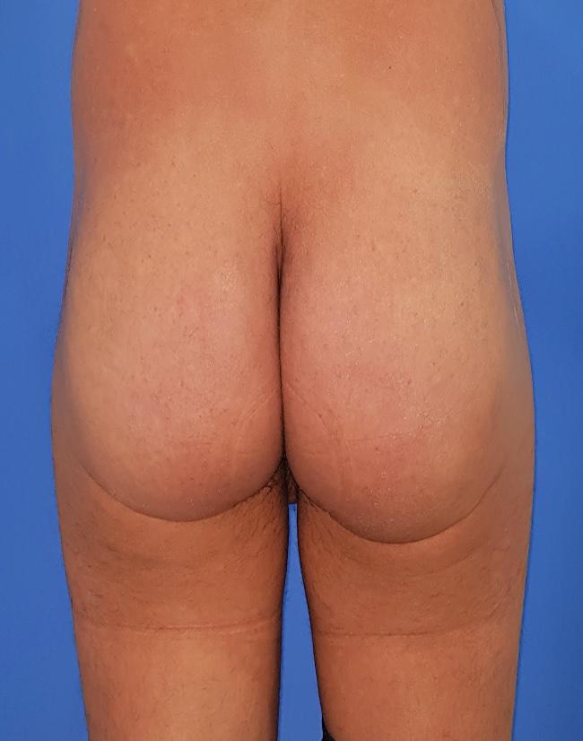 Implante o aumento de gluteos clinica doctor sarmentero cirugia plastica y estetica 3333