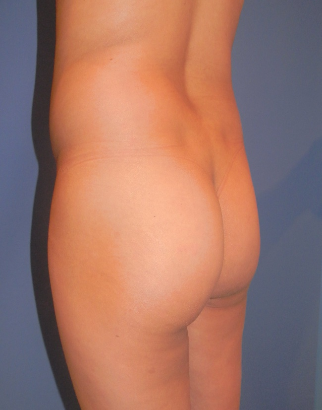 Implante o aumento de gluteos clinica doctor sarmentero cirugia plastica y estetica 4