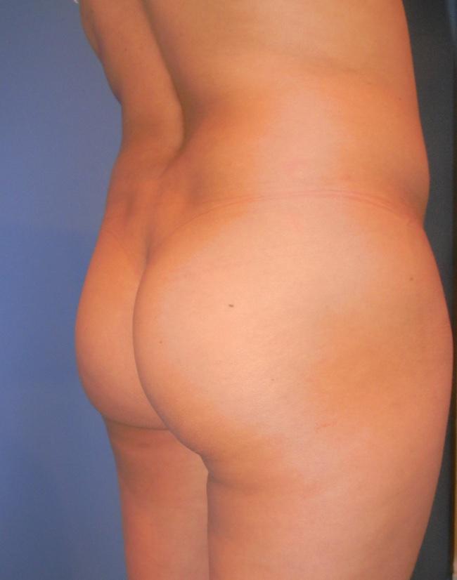Implante o aumento de gluteos clinica doctor sarmentero cirugia plastica y estetica 44