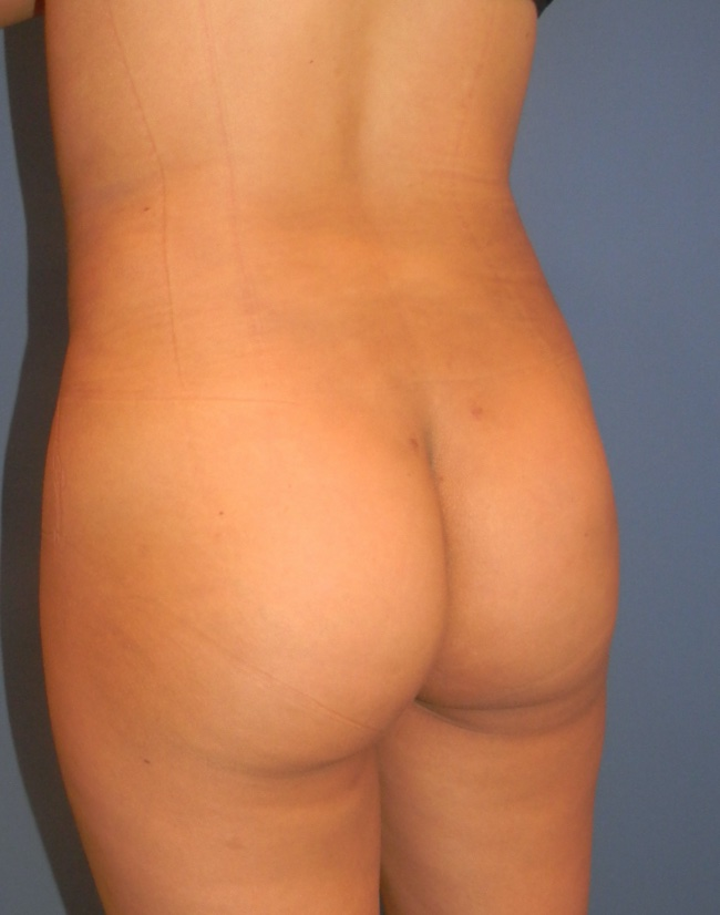 Implante o aumento de gluteos clinica doctor sarmentero cirugia plastica y estetica 444