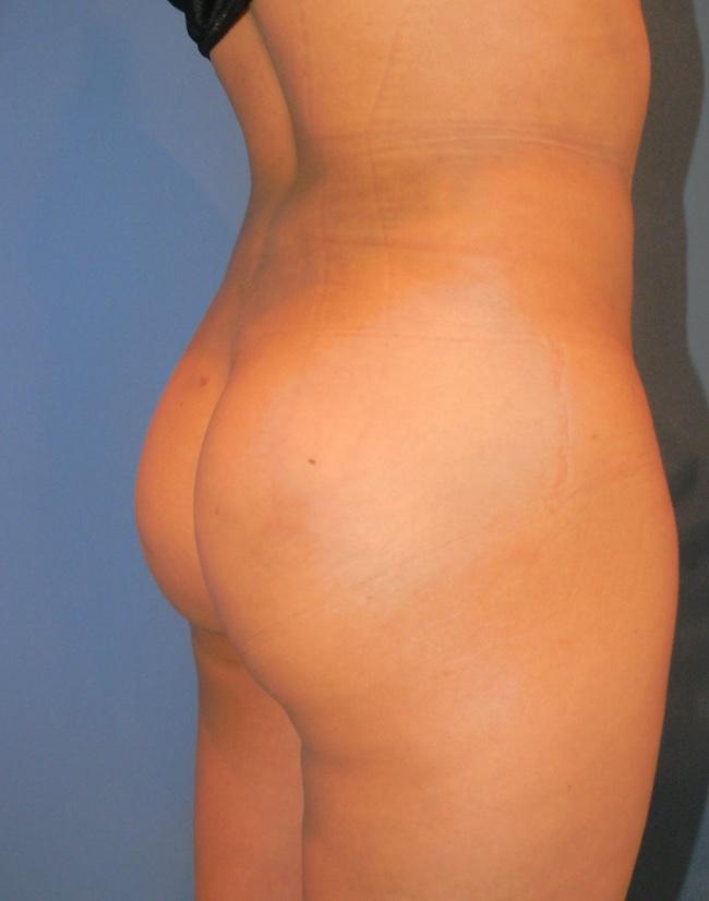 Implante o aumento de gluteos clinica doctor sarmentero cirugia plastica y estetica 4444