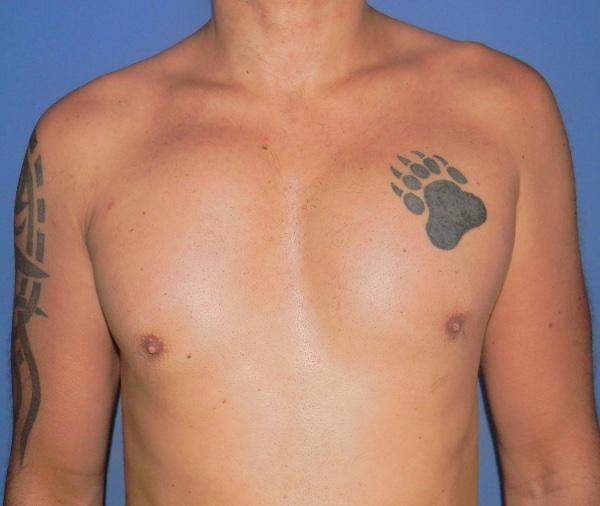 Implante o aumento de pectoral clinica doctor sarmentero cirugia plastia y estetica madrid 1–