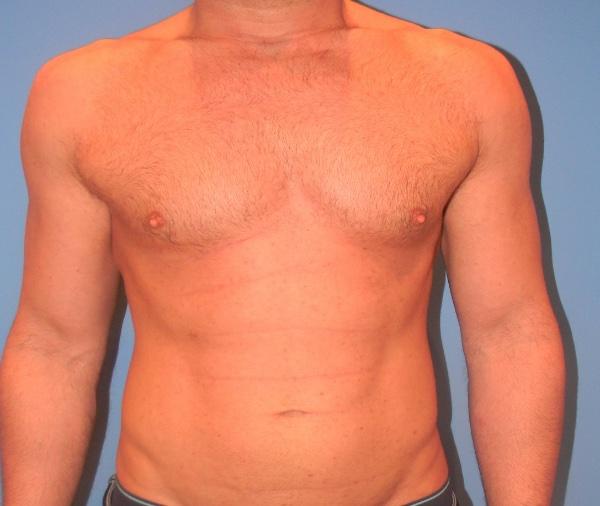 Implante o aumento de pectoral clinica doctor sarmentero cirugia plastia y estetica madrid 2