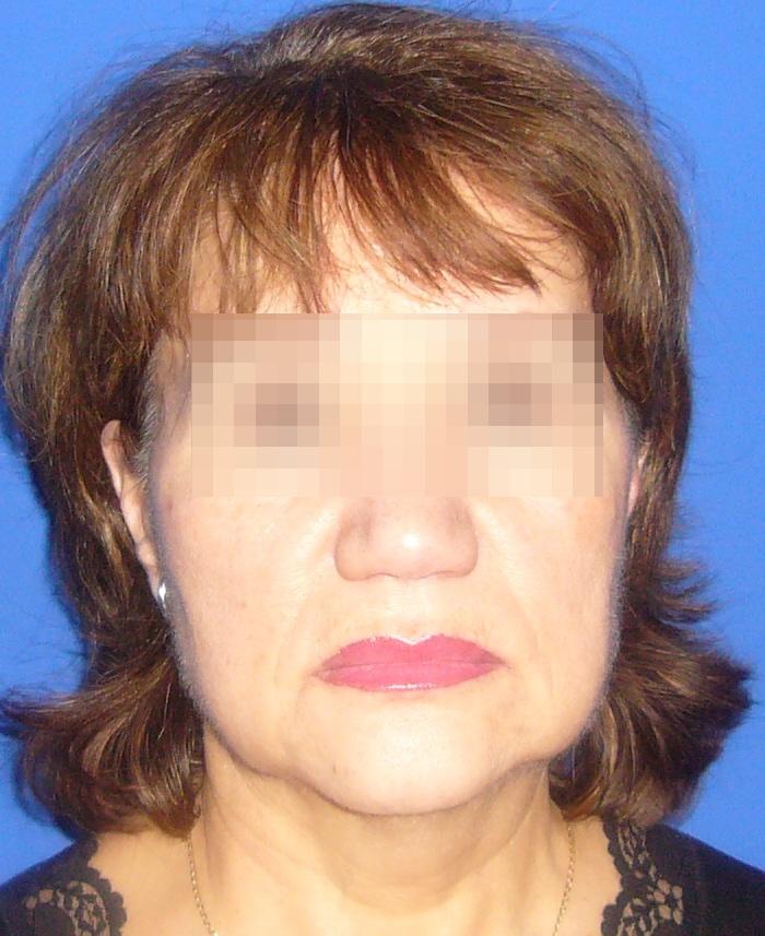 Lifting facial y cervical clinica doctor sarmentero cirugia plastica y estetica madrid 1