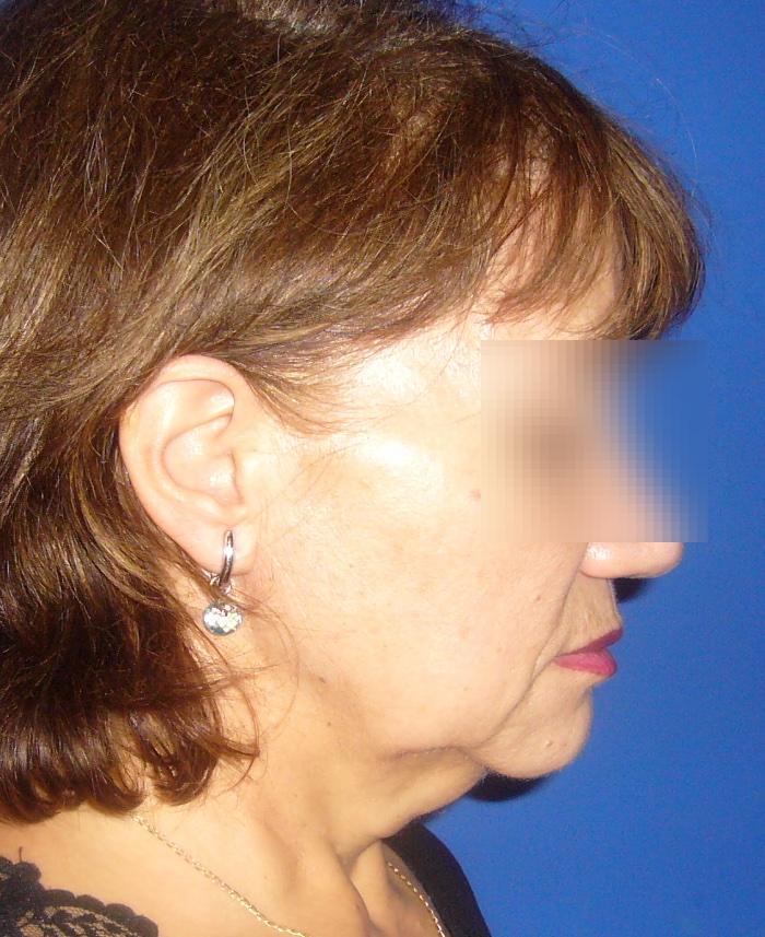 Lifting facial y cervical clinica doctor sarmentero cirugia plastica y estetica madrid 11