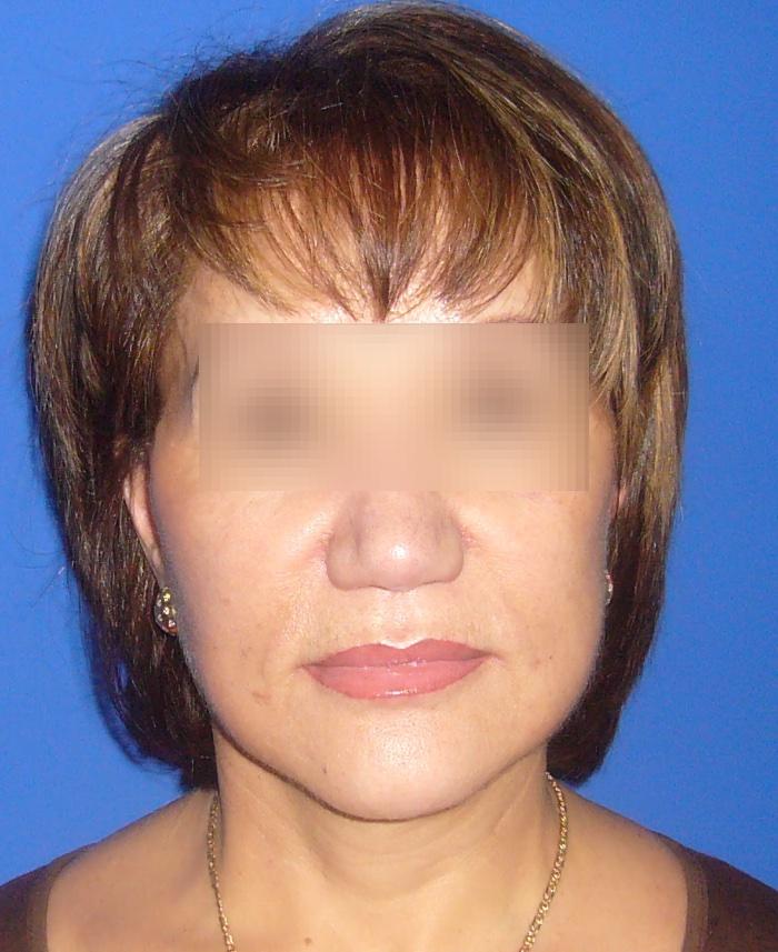 Lifting facial y cervical clinica doctor sarmentero cirugia plastica y estetica madrid 111
