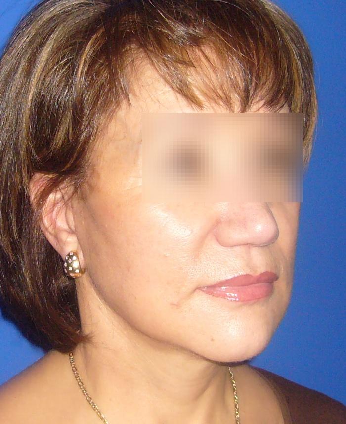 Lifting facial y cervical clinica doctor sarmentero cirugia plastica y estetica madrid 1111