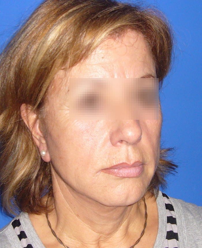 Lifting facial y cervical clinica doctor sarmentero cirugia plastica y estetica madrid 2
