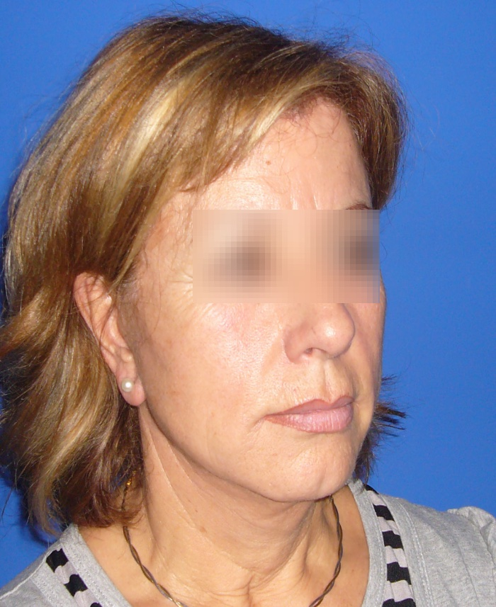 Lifting facial y cervical clinica doctor sarmentero cirugia plastica y estetica madrid 22