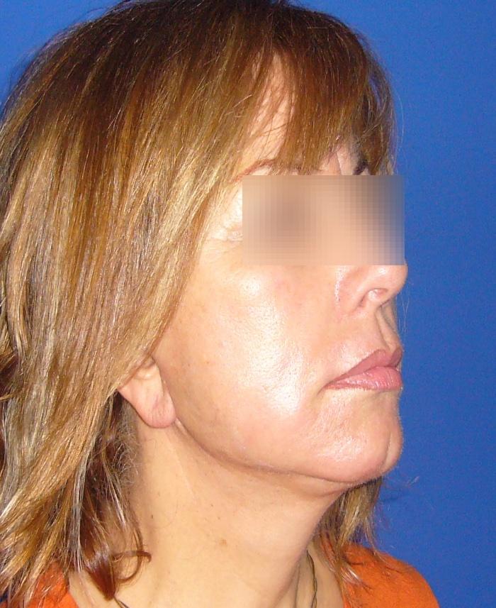 Lifting facial y cervical clinica doctor sarmentero cirugia plastica y estetica madrid 2222