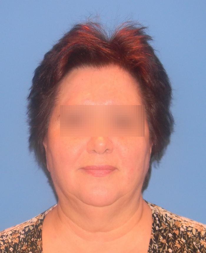 Lifting facial y cervical clinica doctor sarmentero cirugia plastica y estetica madrid 3