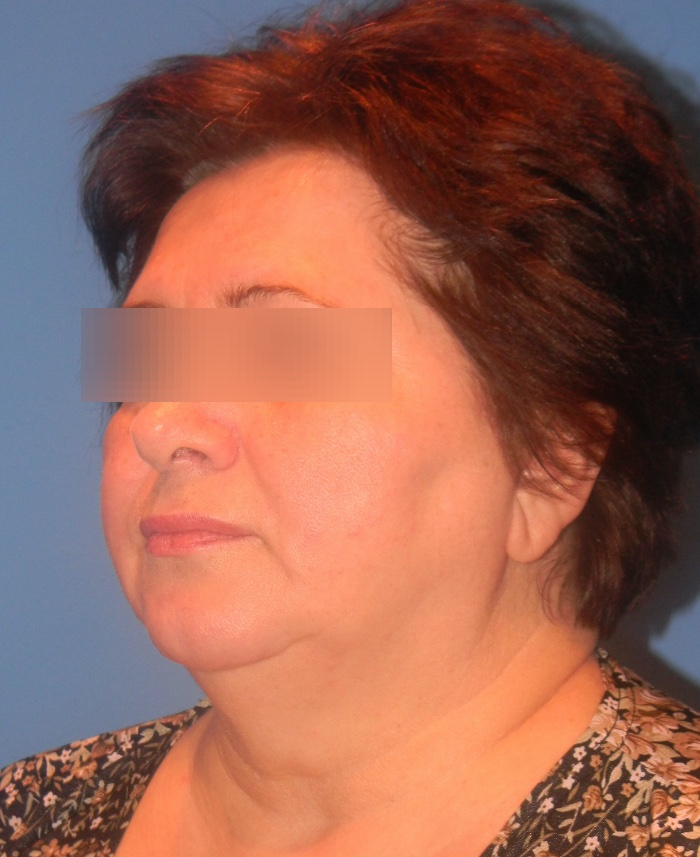 Lifting facial y cervical clinica doctor sarmentero cirugia plastica y estetica madrid 33