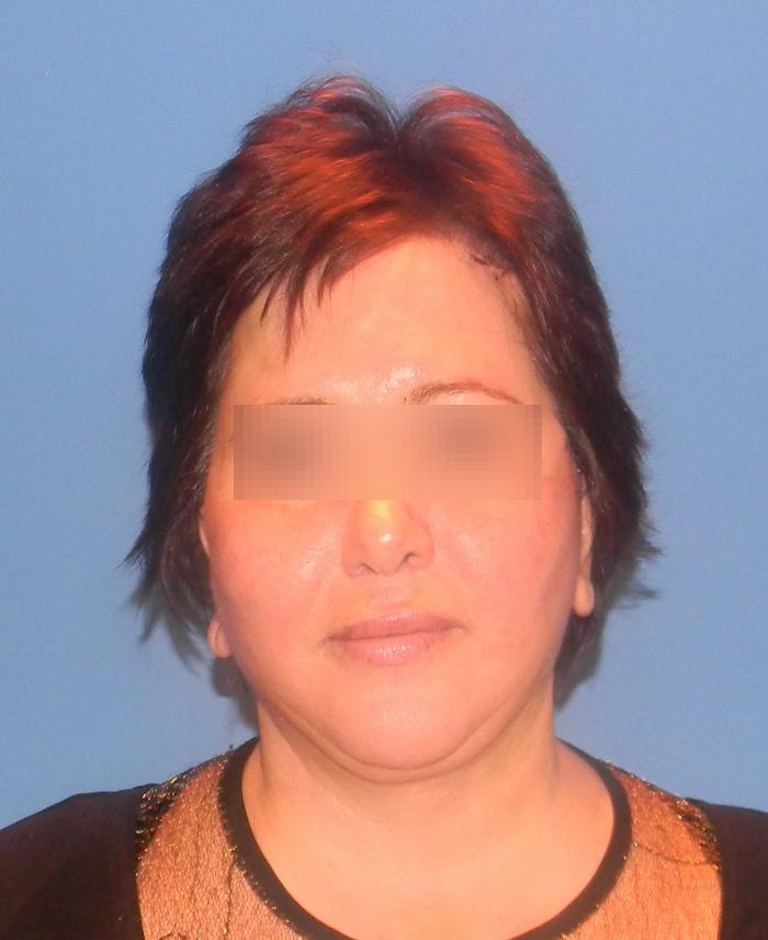 Lifting facial y cervical clinica doctor sarmentero cirugia plastica y estetica madrid 333