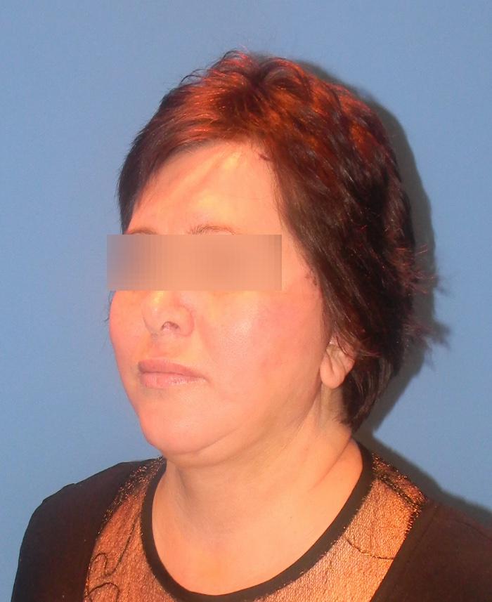 Lifting facial y cervical clinica doctor sarmentero cirugia plastica y estetica madrid 3333