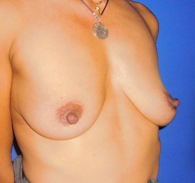 Operacion de elevacion de pecho mastopexia con implantes de pecho doctor sarmentero madrid cirugia plastica y estetica 1 Inicio