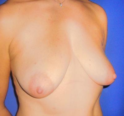 Operacion de elevacion de pecho mastopexia con implantes de pecho doctor sarmentero madrid cirugia plastica y estetica 3 inicio