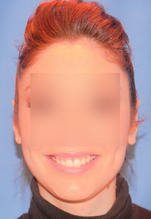 Operacion de orejas otoplastica clinica doctor sarmentero madrid cirugia plastica y estetica 1 fin