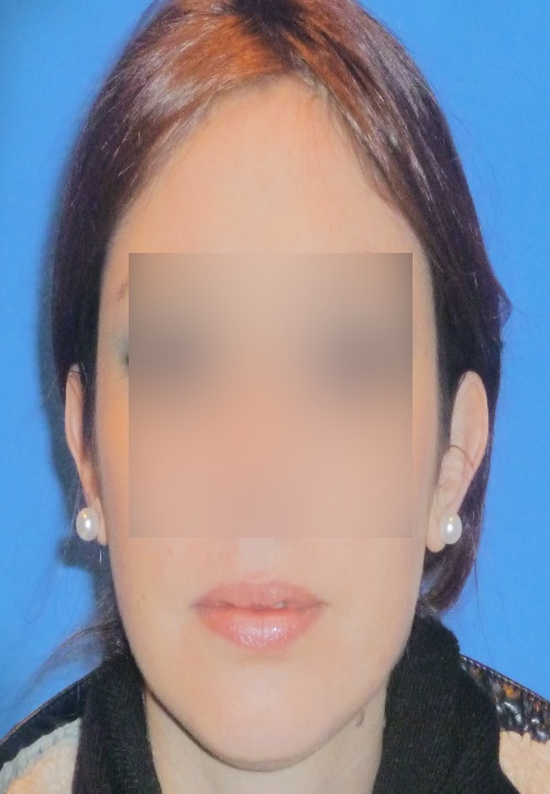 Operacion de orejas otoplastica clinica doctor sarmentero madrid cirugia plastica y estetica 1 inicio