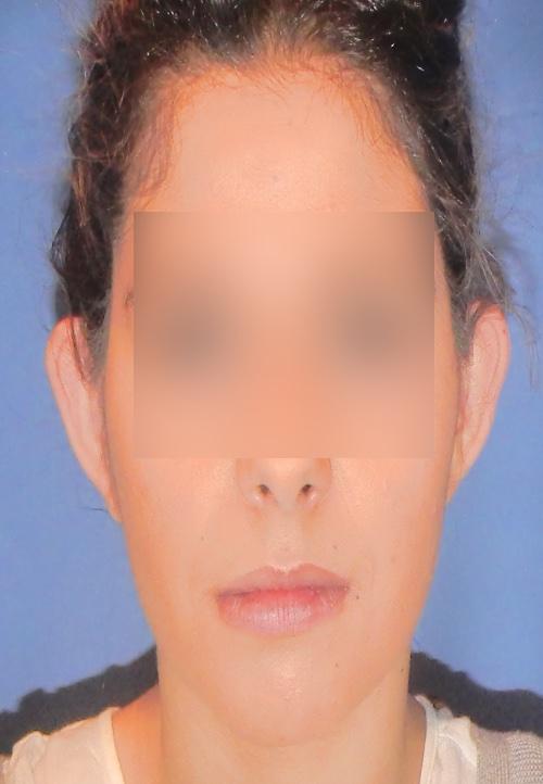 Operacion de orejas otoplastica clinica doctor sarmentero madrid cirugia plastica y estetica 2 inicio