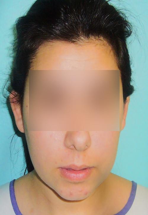Operacion de orejas otoplastica clinica doctor sarmentero madrid cirugia plastica y estetica 3 inicio