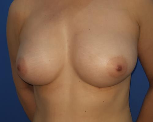 caso real aumento de pecho con lipofilling dr sarmentero cirugia plastica 1-