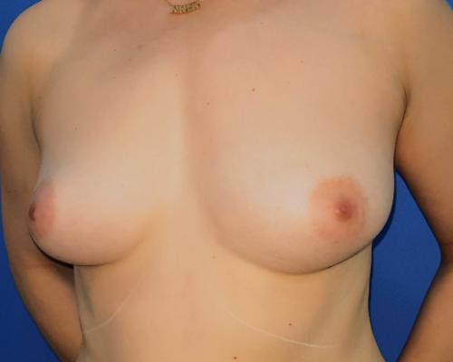 caso real aumento de pecho con lipofilling dr sarmentero cirugia plastica 1