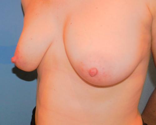 caso real aumento de pecho con lipofilling dr sarmentero cirugia plastica 2-
