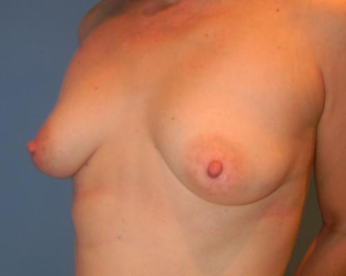caso real aumento de pecho con lipofilling dr sarmentero cirugia plastica 2