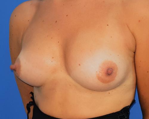 caso real aumento de pecho con lipofilling dr sarmentero cirugia plastica 3-