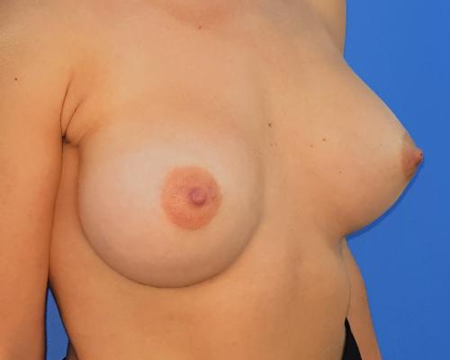caso real aumento de pecho dr sarmentero cirugia plastica 1-