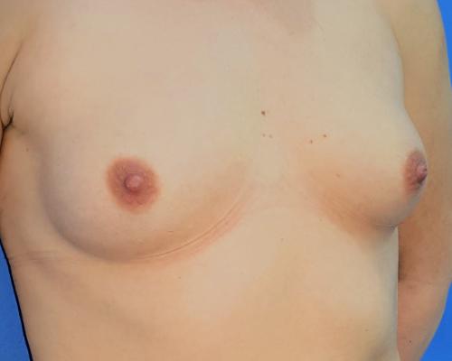 caso real aumento de pecho dr sarmentero cirugia plastica 1