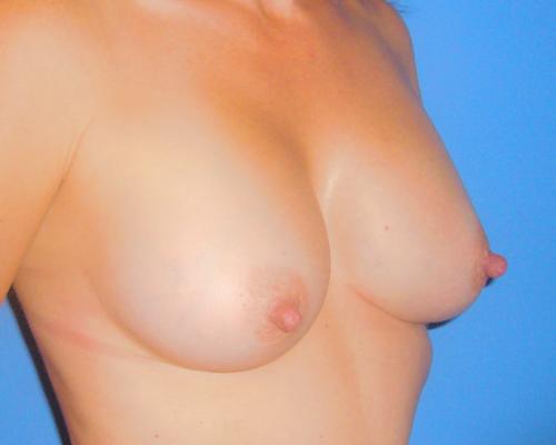caso real aumento de pecho dr sarmentero cirugia plastica 2-