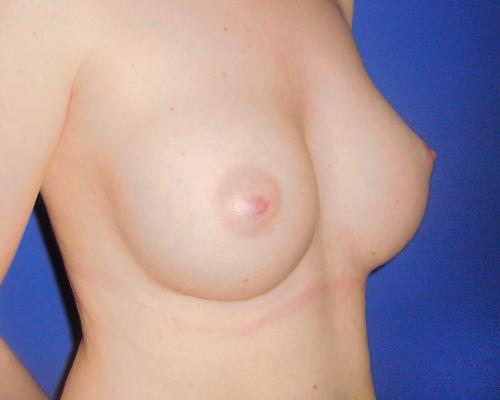 caso real aumento de pecho dr sarmentero cirugia plastica 3-