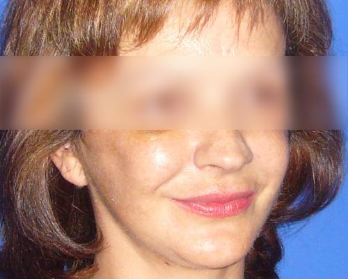 caso real lifting facial dr sarmentero cirugia plastica 1-